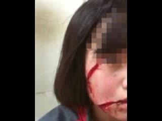 女孩放学路上遭毁容 俏丽脸蛋被刀割