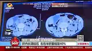 六旬老汉腹痛半世纪拿掉40%肝脏 竟是蛔虫作祟