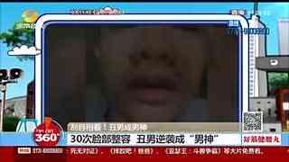 """30次脸部整容 丑男逆袭成""""男神""""无数美女追求"""