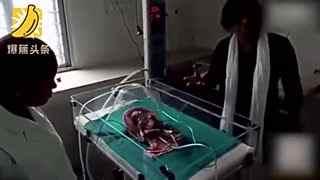 印度畸形婴儿天生4手4脚 一出世即夭折