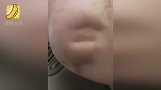 男子忍痛录下抽筋过程 身体似被异物入侵