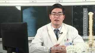 胸科医院骨科秦世炳:脊柱结核必须手术治疗吗