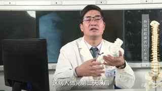 胸科医院骨科秦世炳:骨结核截瘫的治疗方法