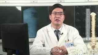 胸科医院骨科秦世炳:服用抗结核药物会引起关节游走性疼痛吗