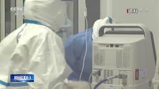 专家呼吁有综合抗体的康复患者捐献血浆