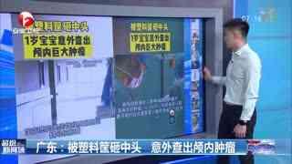 广东:被塑料筐砸中头 意外查出颅内肿瘤