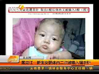 女婴/女婴被扎4根缝衣针穿透肝肾排列整齐疑似人为