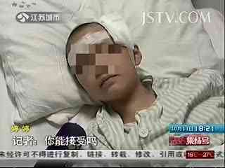 坑面女产子 变脸手术后与养母父儿子结婚--华数